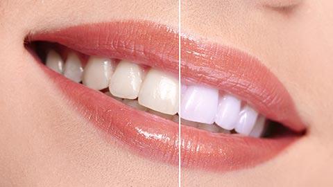Blanchiment de dents à Toulouse